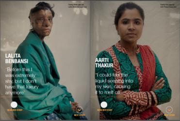 Acid Attacks Women in India_AJE 02