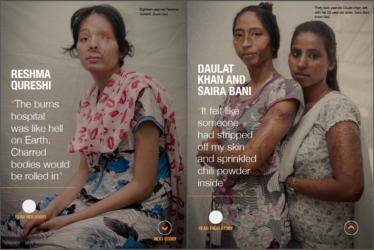 Acid Attacks Women in India_AJE 03